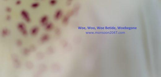 Woe, Woo, Woe Betide, Woebegone
